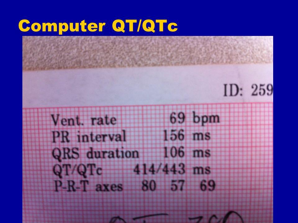 Computer QT/QTc
