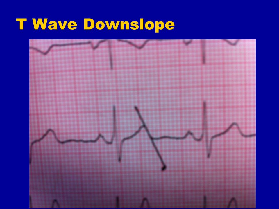 T Wave Downslope