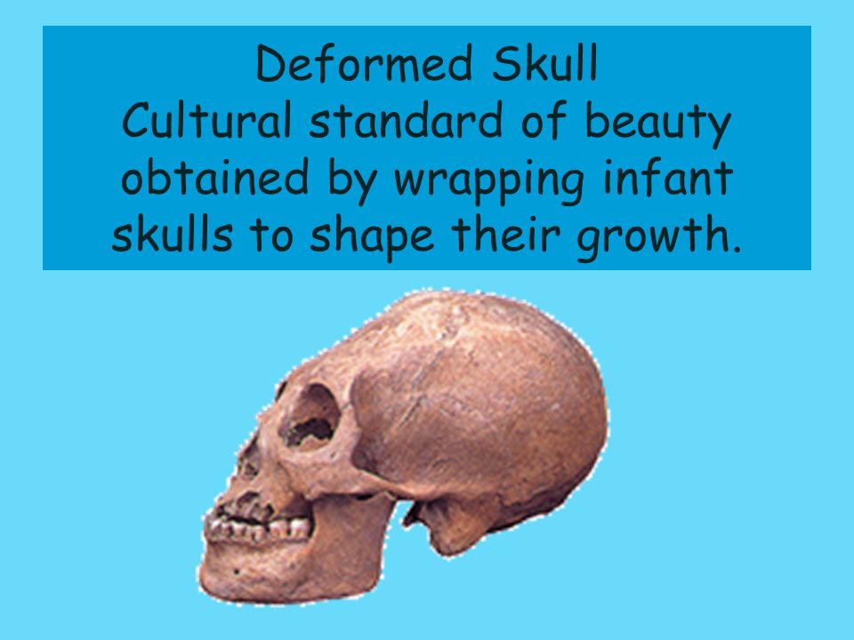 Deformed Skull Cultural standard of beauty obtained by wrapping infant skulls to shape their growth.