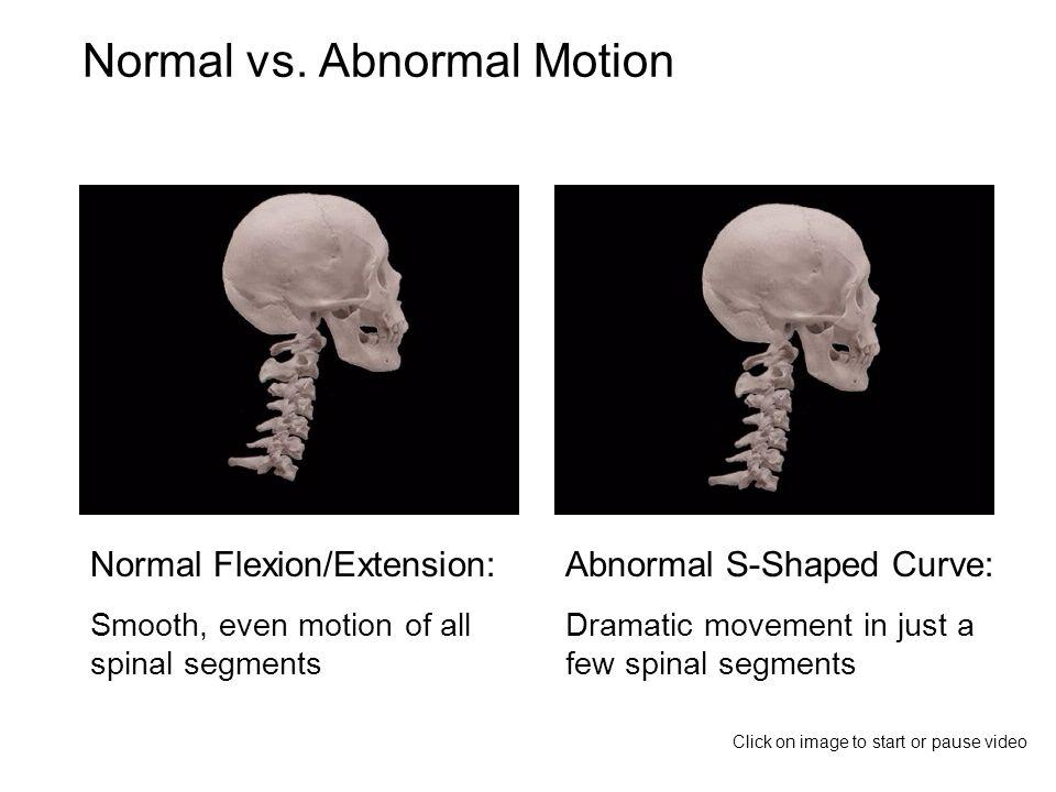 Normal vs.