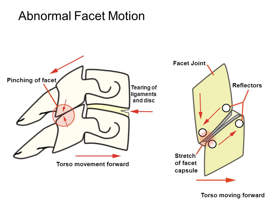 Pinching of facet Torso movement forward Torso moving forward Tearing of ligaments and disc Facet Joint Reflectors Stretch of facet capsule Abnormal Facet Motion