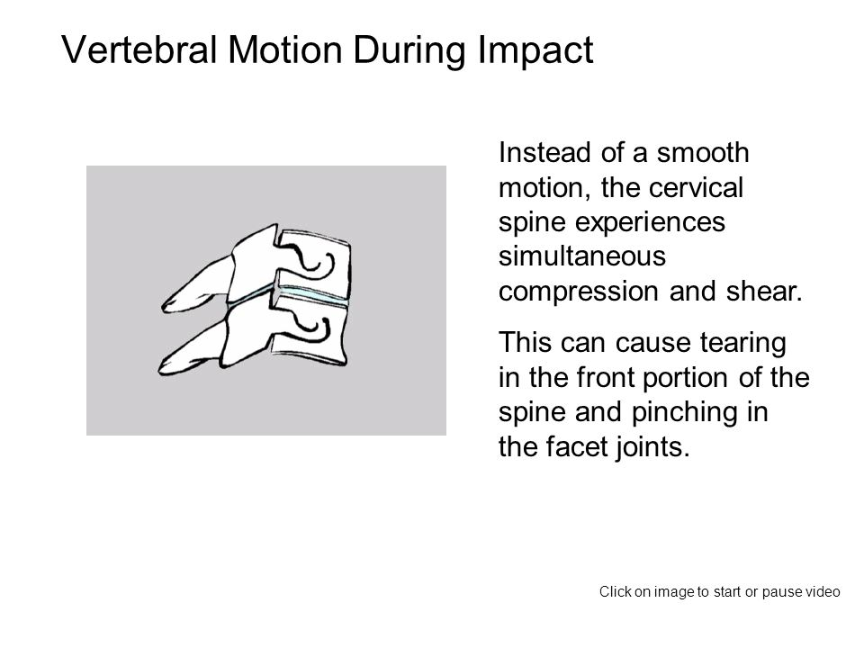 Vertebral Motion During Impact Instead of a smooth motion, the cervical spine experiences simultaneous compression and shear.