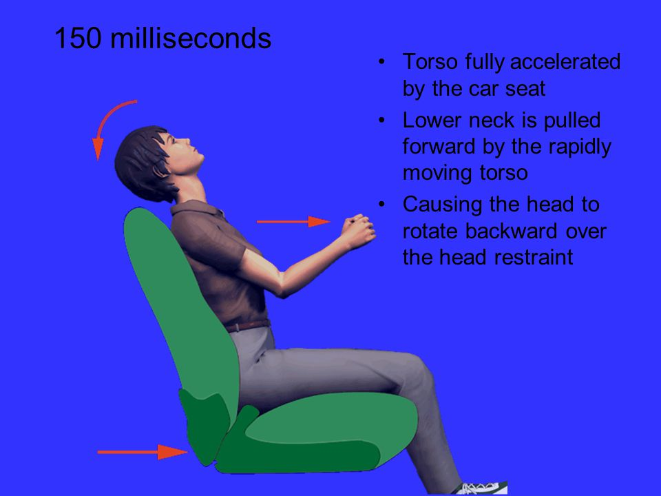 Torso fully accelerated by the car seat Lower neck is pulled forward by the rapidly moving torso Causing the head to rotate backward over the head restraint 150 milliseconds