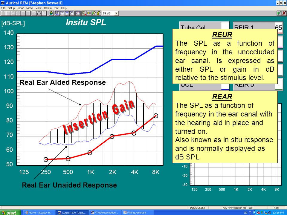 Real Ear Unaided Response Real Ear Aided Response REAR The SPL as a function of frequency in the ear canal with the hearing aid in place and turned on