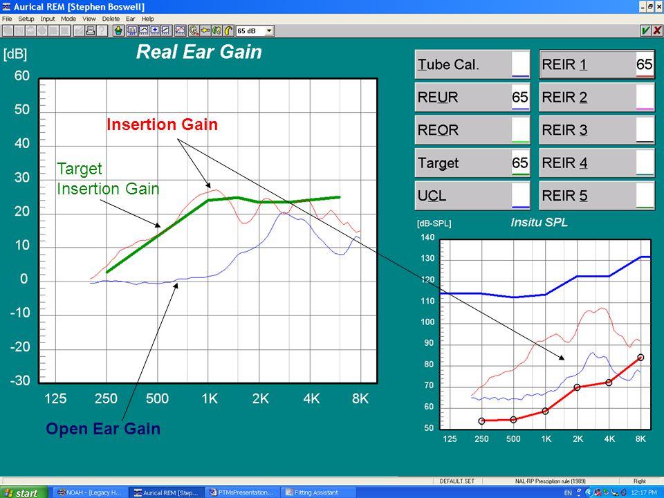 Open Ear Gain Insertion Gain Target Insertion Gain