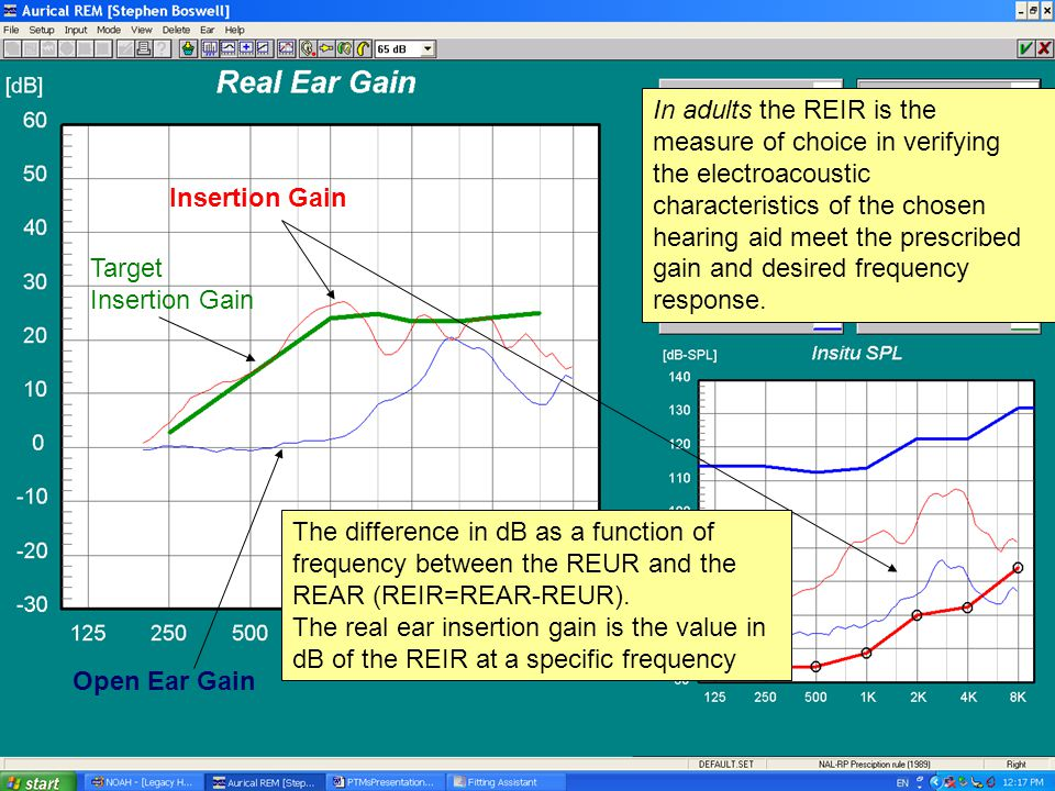 Open Ear Gain Insertion Gain Target Insertion Gain The difference in dB as a function of frequency between the REUR and the REAR (REIR=REAR-REUR). The