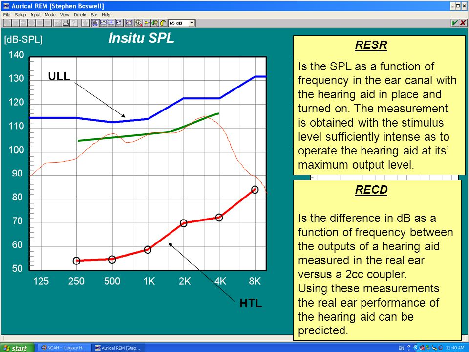 ULL HTL RESR Is the SPL as a function of frequency in the ear canal with the hearing aid in place and turned on. The measurement is obtained with the