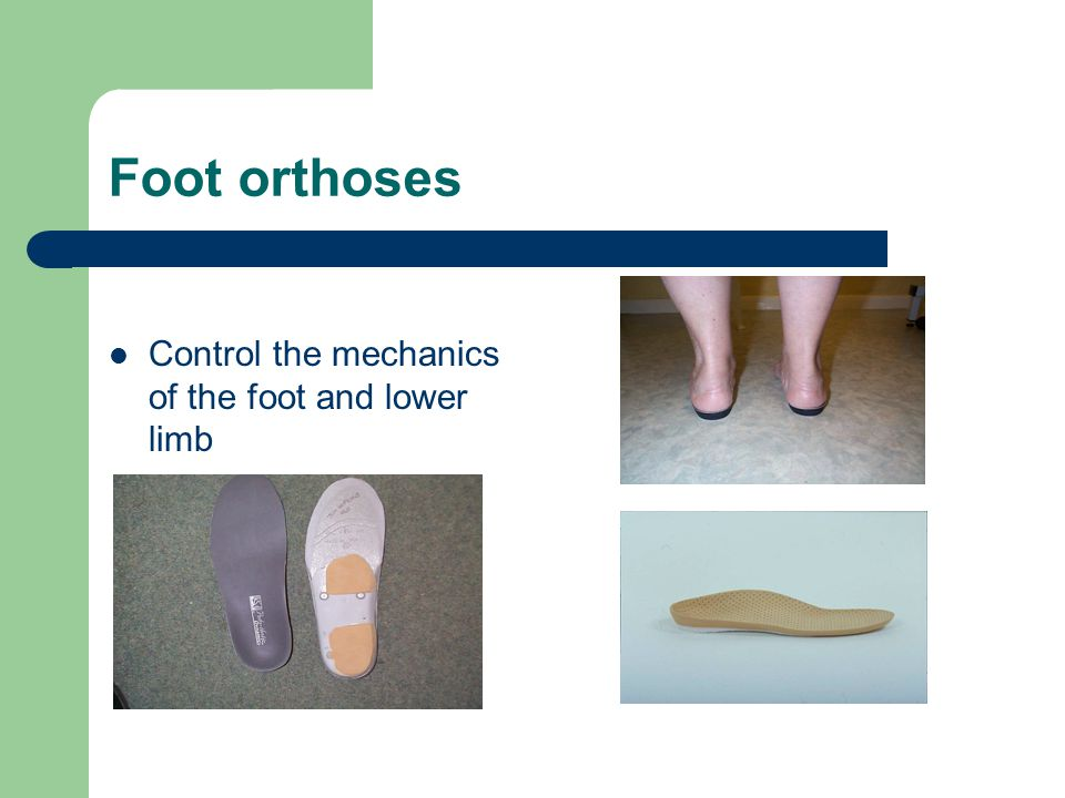 Foot orthoses Control the mechanics of the foot and lower limb