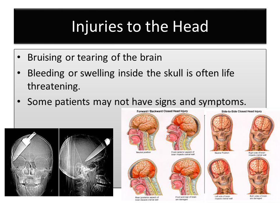 Injuries to the Head Bruising or tearing of the brain Bleeding or swelling inside the skull is often life threatening. Some patients may not have sign