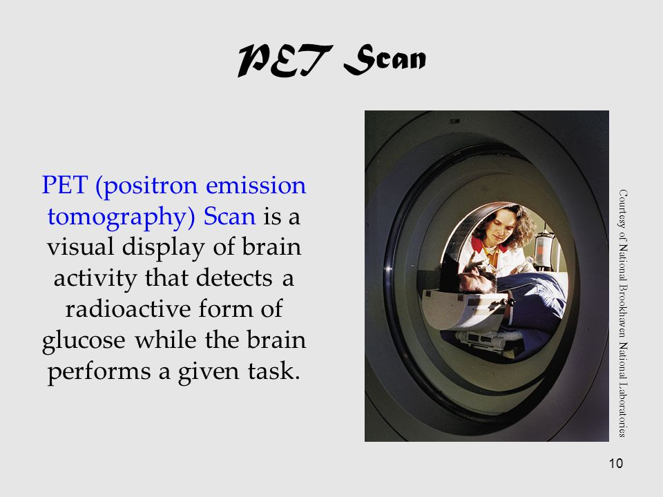 10 PET Scan PET (positron emission tomography) Scan is a visual display of brain activity that detects a radioactive form of glucose while the brain performs a given task.
