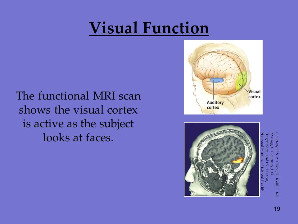 19 Visual Function The functional MRI scan shows the visual cortex is active as the subject looks at faces. Courtesy of V.P. Clark, K. Keill, J. Ma. M