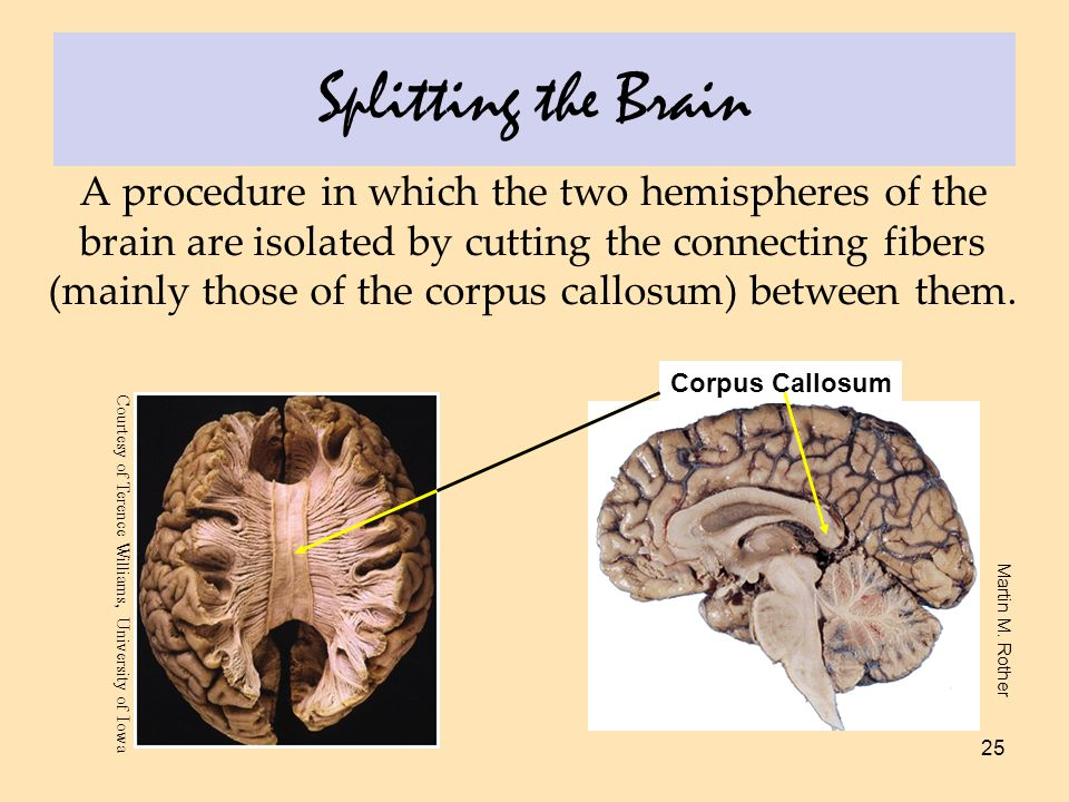 25 Splitting the Brain A procedure in which the two hemispheres of the brain are isolated by cutting the connecting fibers (mainly those of the corpus callosum) between them.