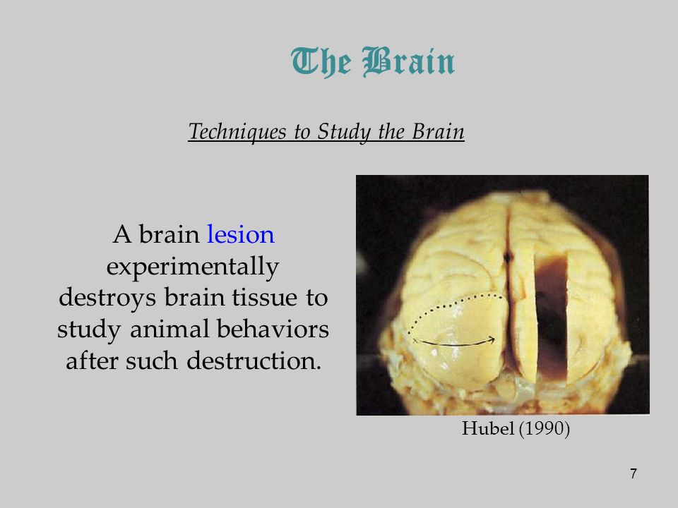 7 The Brain Techniques to Study the Brain A brain lesion experimentally destroys brain tissue to study animal behaviors after such destruction.