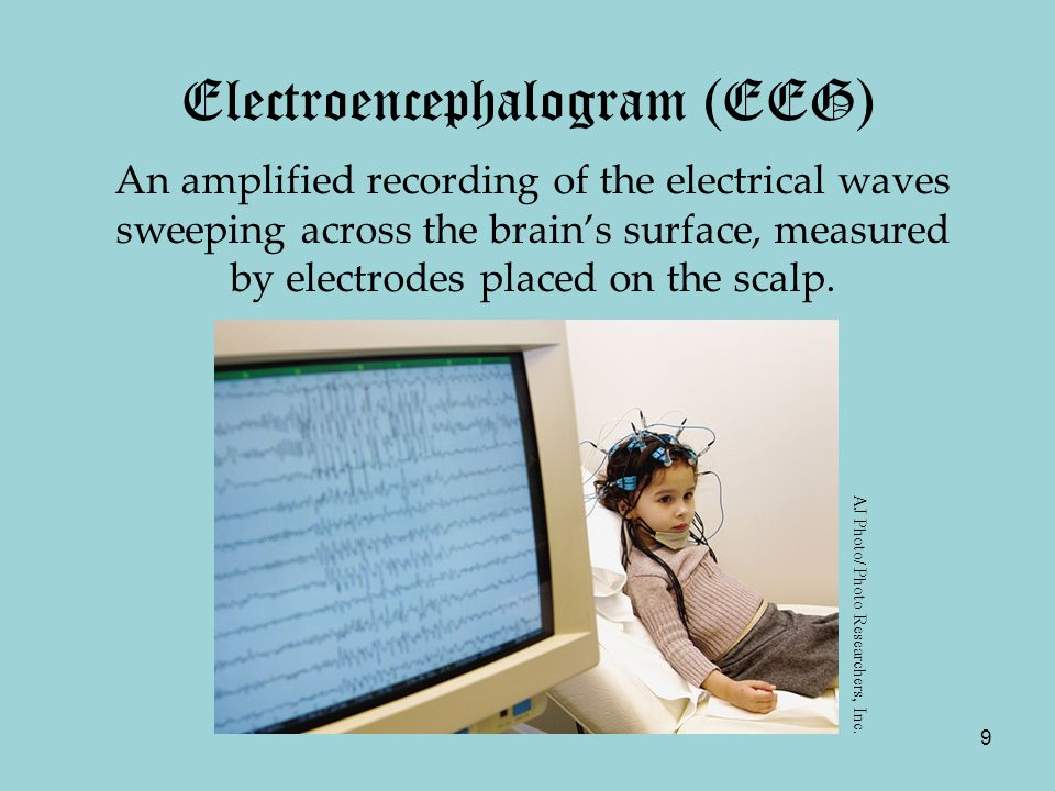 9 Electroencephalogram (EEG) An amplified recording of the electrical waves sweeping across the brain's surface, measured by electrodes placed on the scalp.