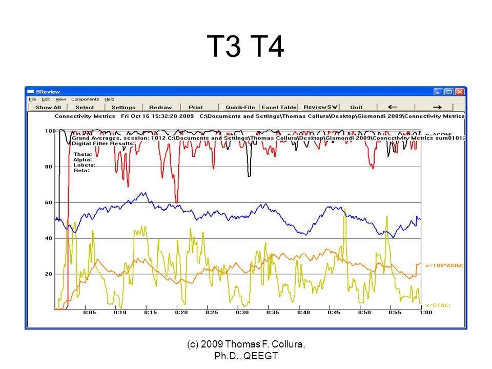 T3 T4 (c) 2009 Thomas F. Collura, Ph.D., QEEGT