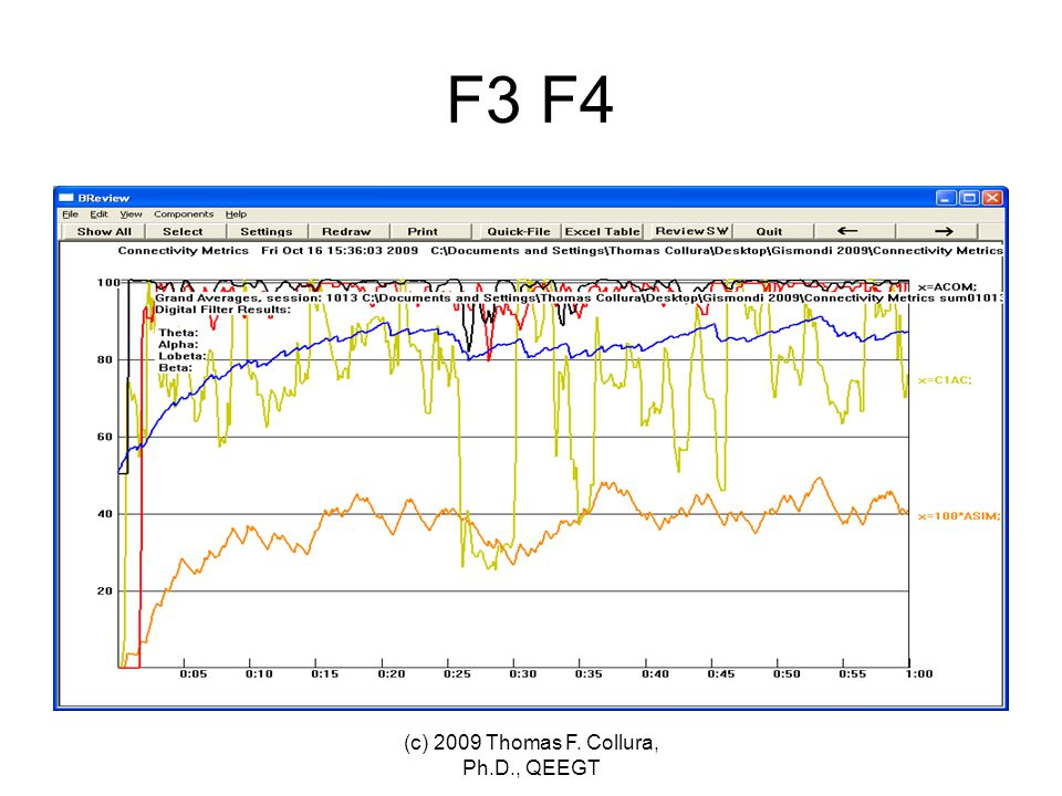 F3 F4 (c) 2009 Thomas F. Collura, Ph.D., QEEGT