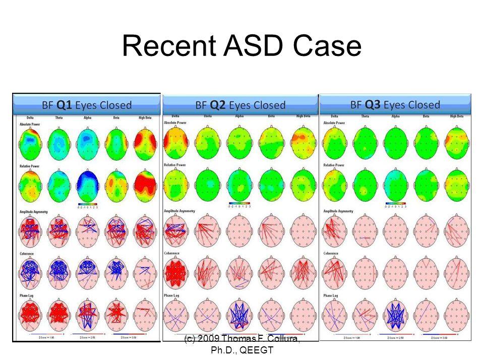 Recent ASD Case (c) 2009 Thomas F. Collura, Ph.D., QEEGT