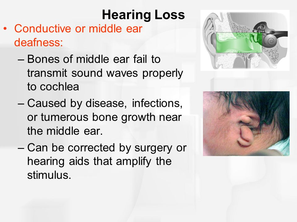 Hearing Loss Conductive or middle ear deafness: –Bones of middle ear fail to transmit sound waves properly to cochlea –Caused by disease, infections,