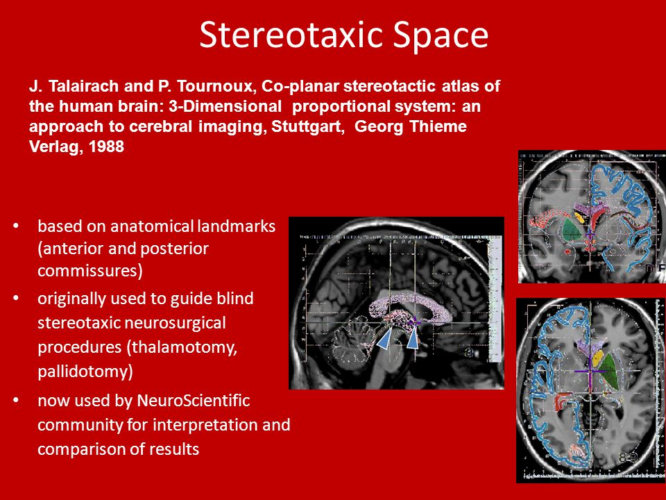 Stereotaxic Space based on anatomical landmarks (anterior and posterior commissures) originally used to guide blind stereotaxic neurosurgical procedures (thalamotomy, pallidotomy) now used by NeuroScientific community for interpretation and comparison of results J.