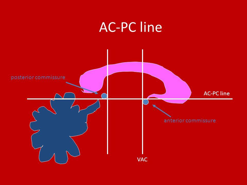 AC-PC line anterior commissure AC-PC line posterior commissure VAC