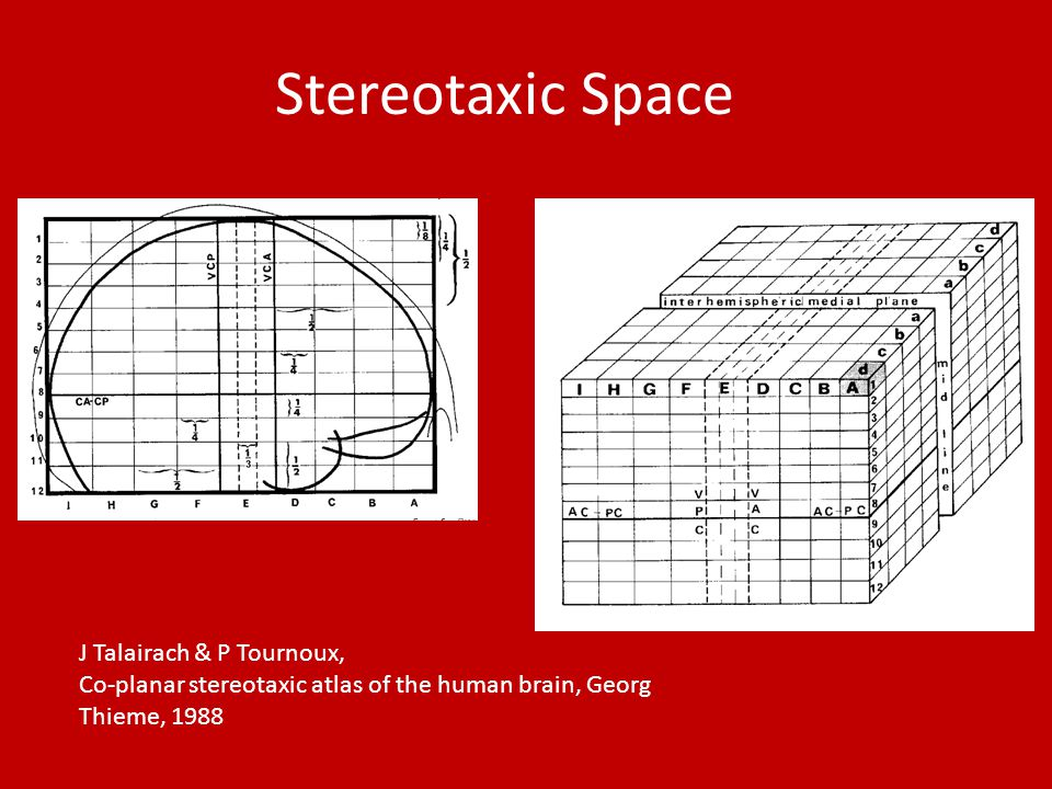 Stereotaxic Space J Talairach & P Tournoux, Co-planar stereotaxic atlas of the human brain, Georg Thieme, 1988