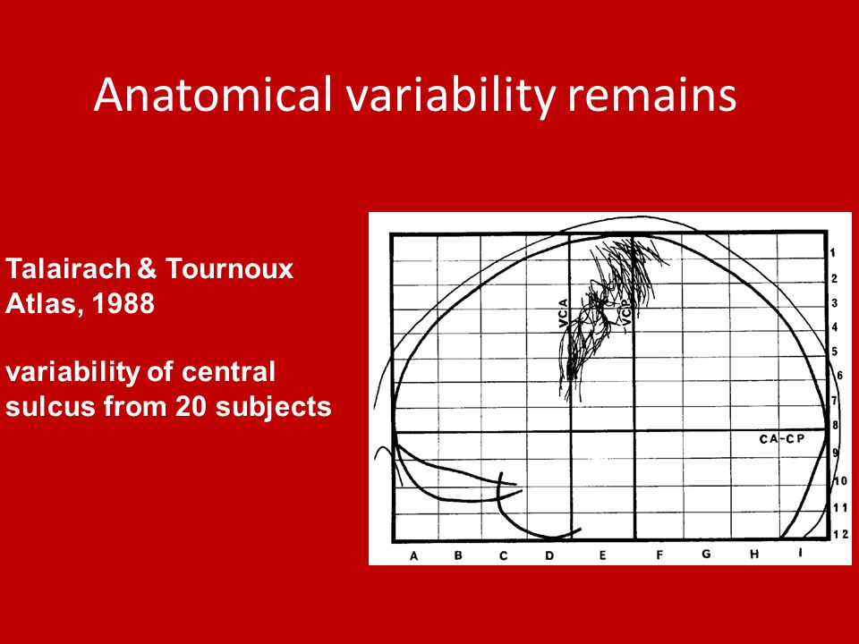Anatomical variability remains Talairach & Tournoux Atlas, 1988 variability of central sulcus from 20 subjects