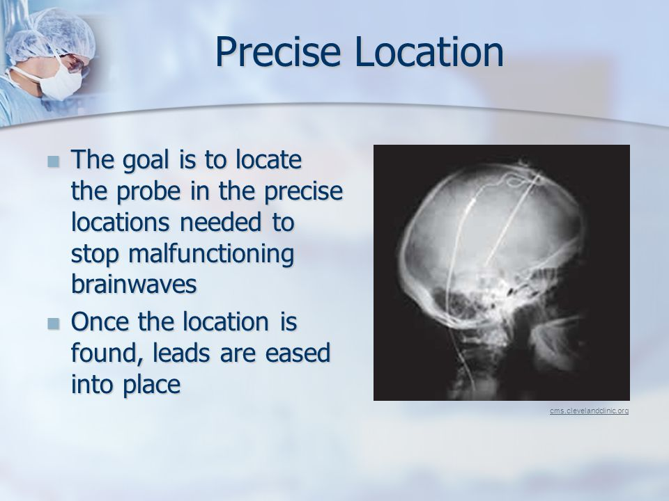 Precise Location The goal is to locate the probe in the precise locations needed to stop malfunctioning brainwaves The goal is to locate the probe in the precise locations needed to stop malfunctioning brainwaves Once the location is found, leads are eased into place Once the location is found, leads are eased into place cms.clevelandclinic.org
