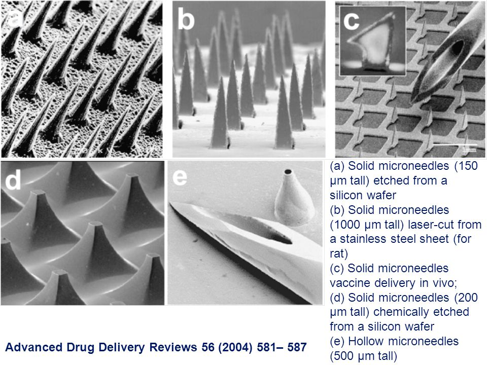 (a) Solid microneedles (150 µm tall) etched from a silicon wafer (b) Solid microneedles (1000 µm tall) laser-cut from a stainless steel sheet (for rat) (c) Solid microneedles vaccine delivery in vivo; (d) Solid microneedles (200 µm tall) chemically etched from a silicon wafer (e) Hollow microneedles (500 µm tall) Advanced Drug Delivery Reviews 56 (2004) 581– 587