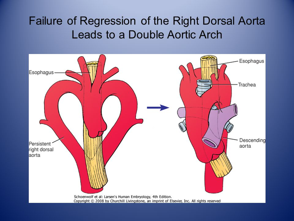 Failure of Regression of the Right Dorsal Aorta Leads to a Double Aortic Arch