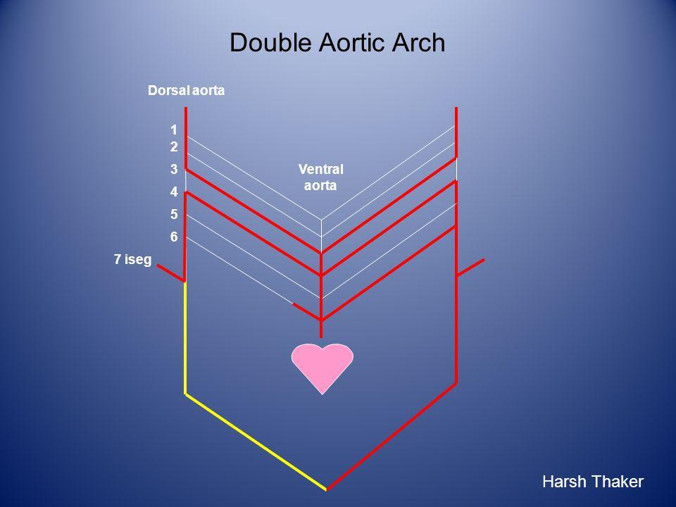 Double Aortic Arch 1 2 3 6 4 5 7 iseg Ventral aorta Dorsal aorta Harsh Thaker