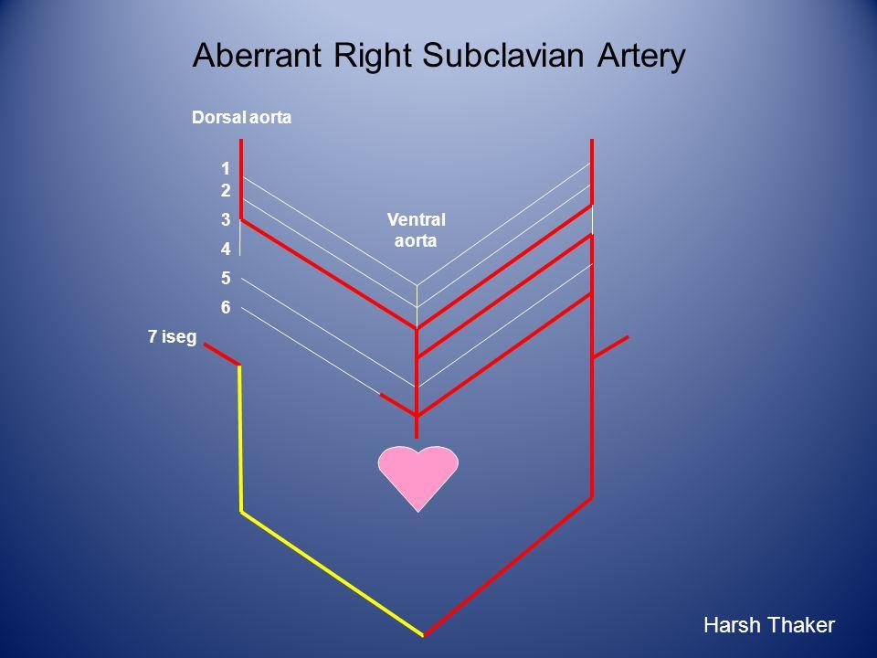Aberrant Right Subclavian Artery 1 2 3 6 4 5 7 iseg Ventral aorta Dorsal aorta Harsh Thaker