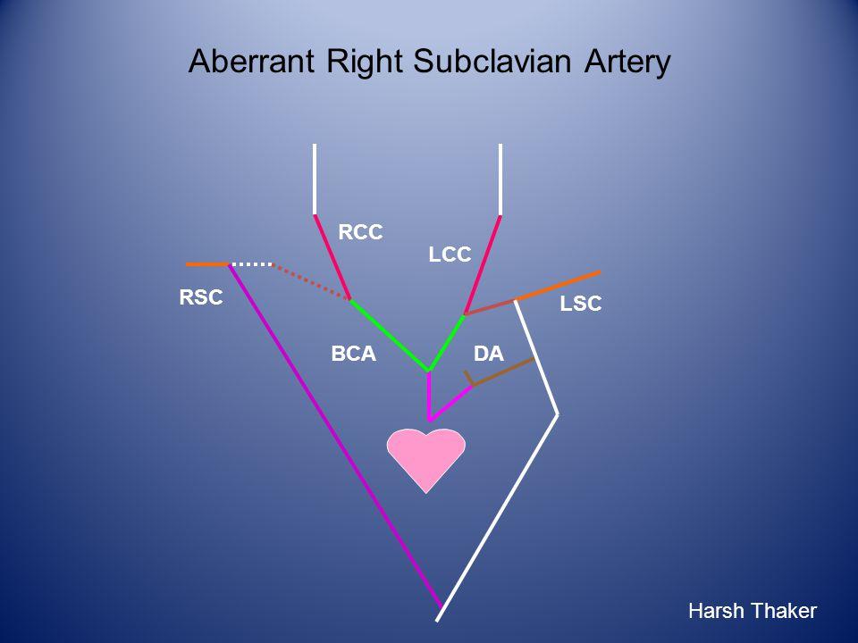 LCC RCC RSC BCA LSC DA Harsh Thaker Aberrant Right Subclavian Artery