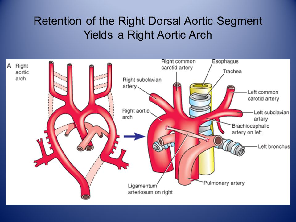 Retention of the Right Dorsal Aortic Segment Yields a Right Aortic Arch