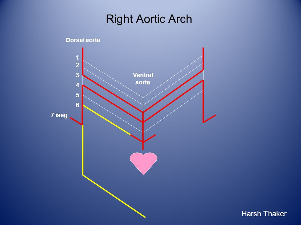 Right Aortic Arch 1 2 3 6 4 5 7 iseg Ventral aorta Dorsal aorta Harsh Thaker