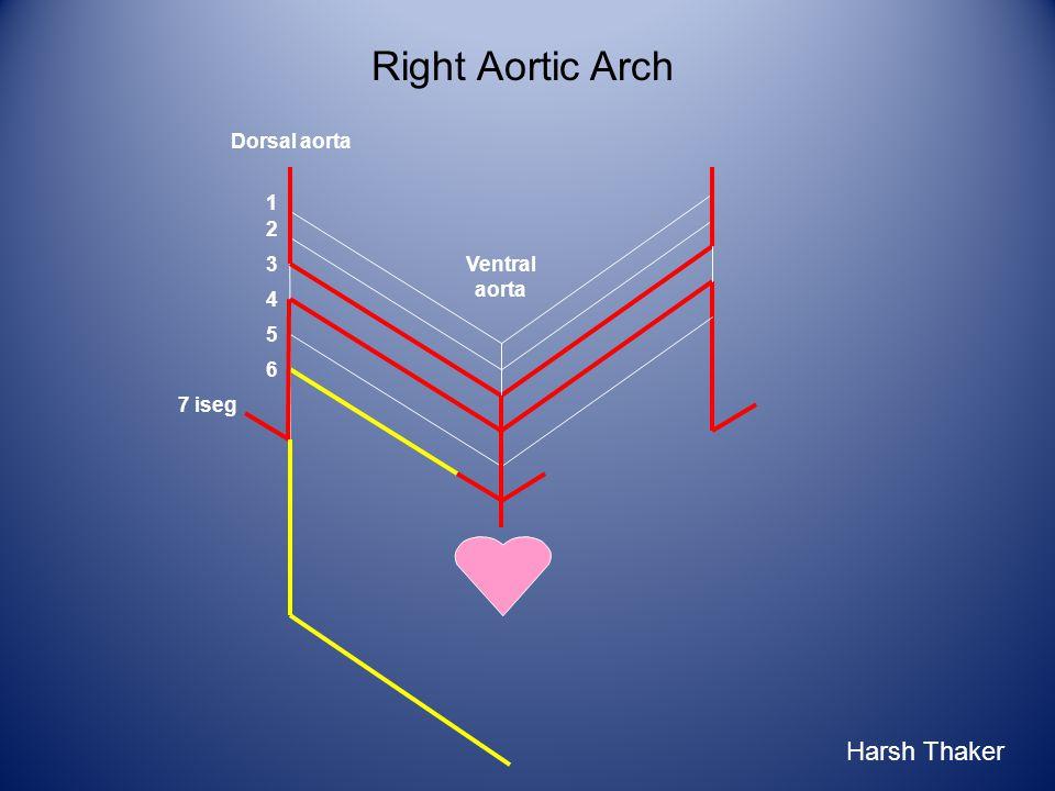 Right Aortic Arch 1 2 3 6 4 5 7 iseg Ventral aorta Dorsal aorta Harsh Thaker