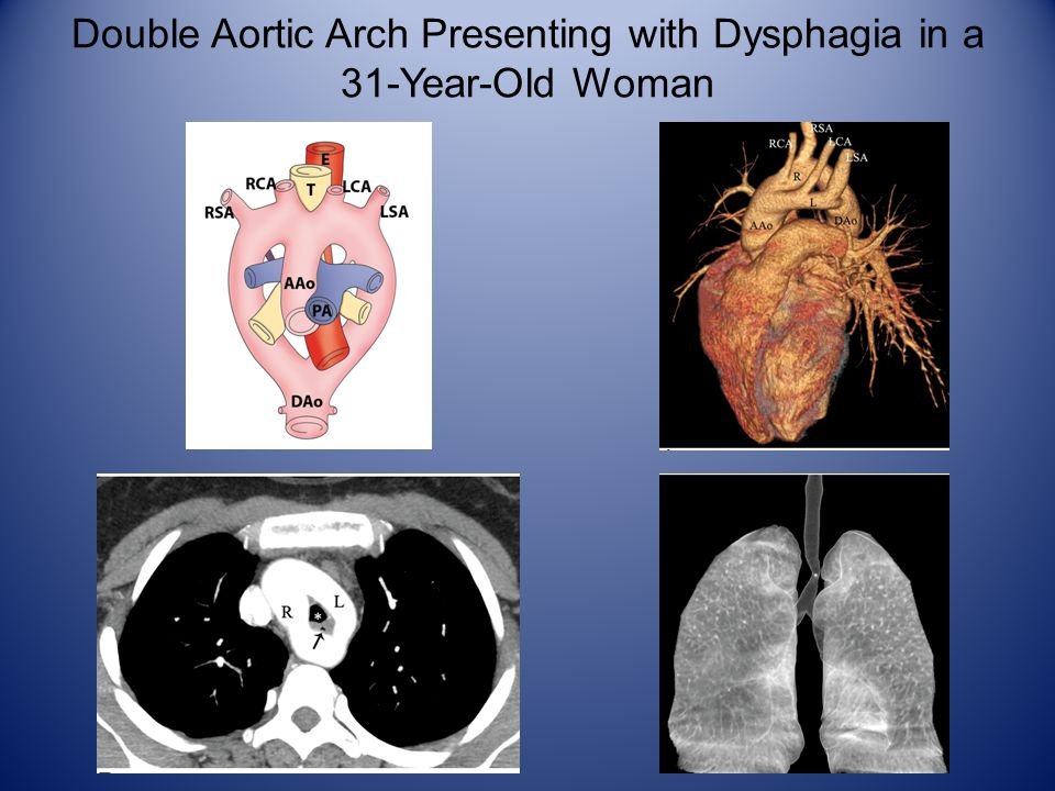 Double Aortic Arch Presenting with Dysphagia in a 31-Year-Old Woman