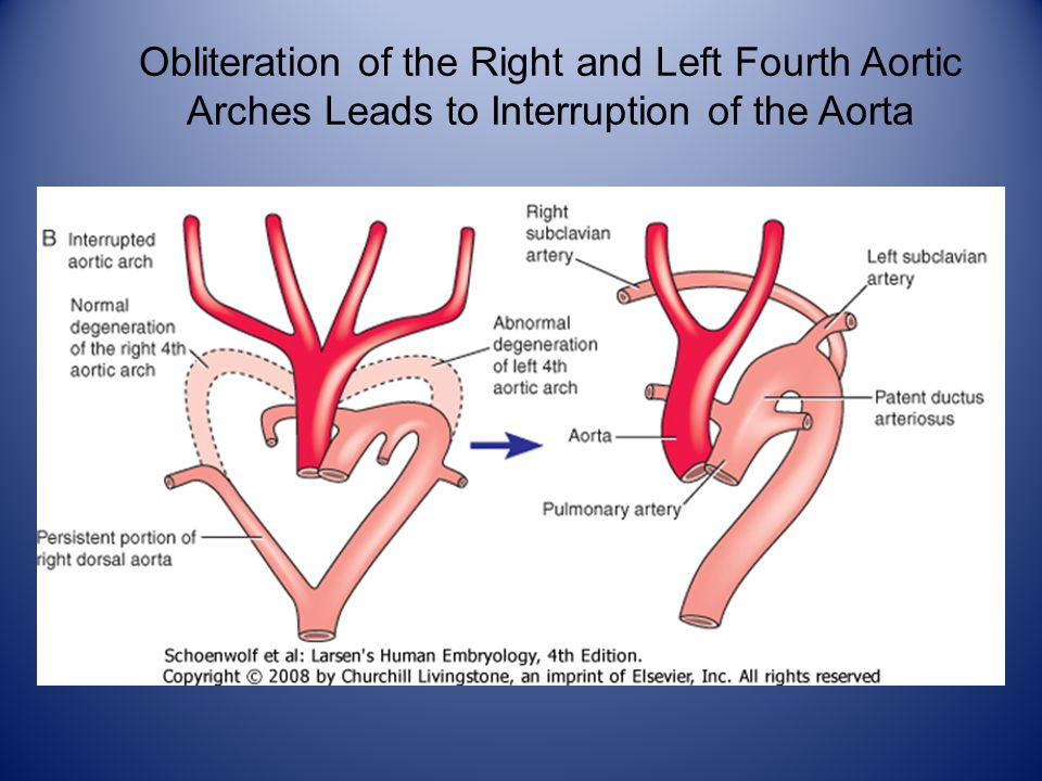 Obliteration of the Right and Left Fourth Aortic A r c h e s L e a d s t o a n A o r t i c A r c h I n t e r r u p t i o n Obliteration of the Right and Left Fourth Aortic Arches Leads to Interruption of the Aorta