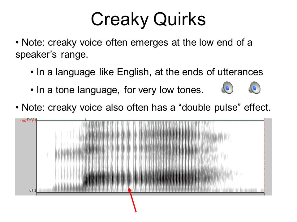 Creaky EGG Note: vocal folds are very short during creaky voicing. Look at the creaky video.