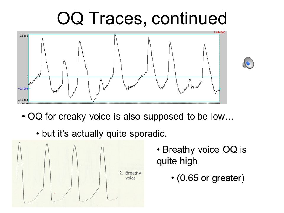 Tense Voice Tense voice (from throat singing demo) has a lower open quotient.