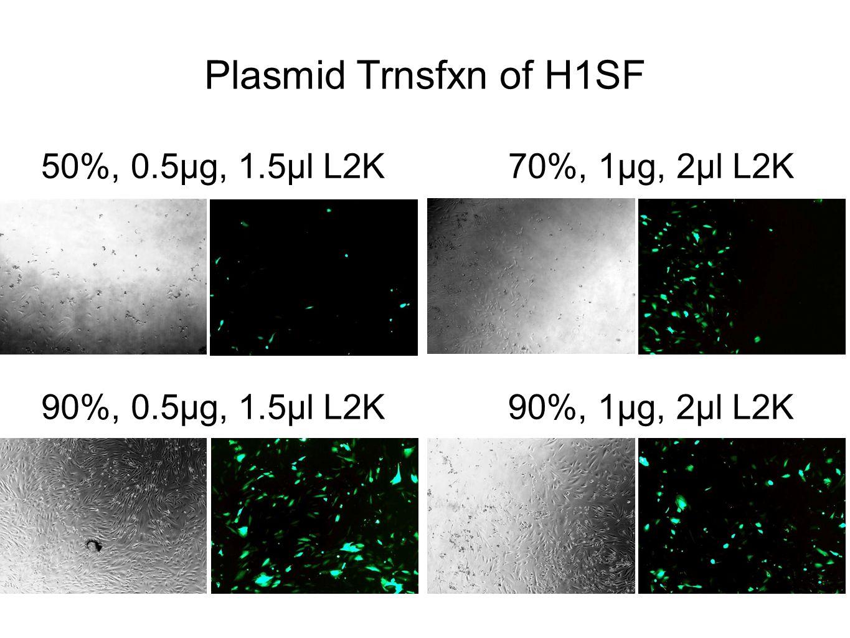 50%, 0.5µg, 1.5µl L2K70%, 1µg, 2µl L2K 90%, 0.5µg, 1.5µl L2K90%, 1µg, 2µl L2K Plasmid Trnsfxn of H1SF