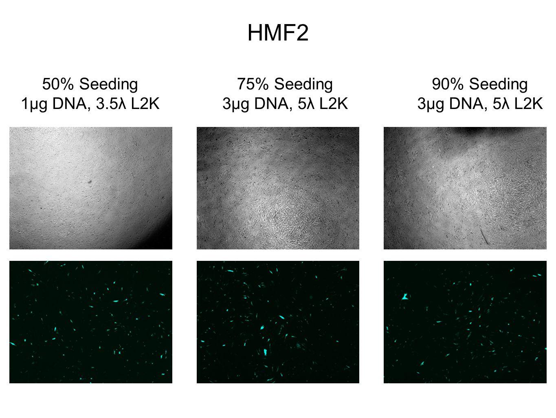 HMF2 50% Seeding 1µg DNA, 3.5λ L2K 75% Seeding 3µg DNA, 5λ L2K 90% Seeding 3µg DNA, 5λ L2K