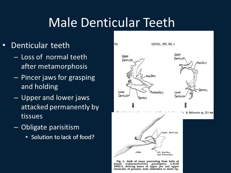Male Denticular Teeth Denticular teeth – Loss of normal teeth after metamorphosis – Pincer jaws for grasping and holding – Upper and lower jaws attacked permanently by tissues – Obligate parisitism Solution to lack of food