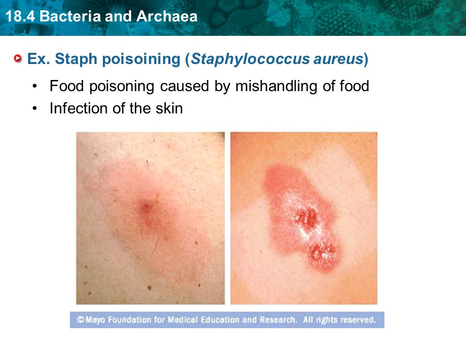 18.4 Bacteria and Archaea Ex. Staph poisoining (Staphylococcus aureus) Food poisoning caused by mishandling of food Infection of the skin