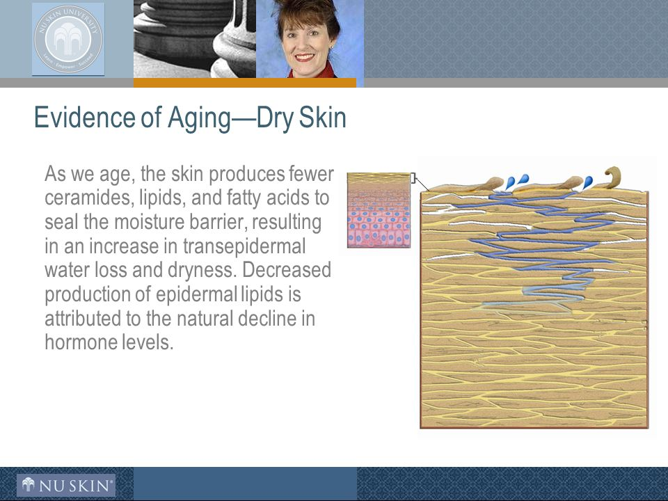 Evidence of Aging—Dry Skin As we age, the skin produces fewer ceramides, lipids, and fatty acids to seal the moisture barrier, resulting in an increase in transepidermal water loss and dryness.