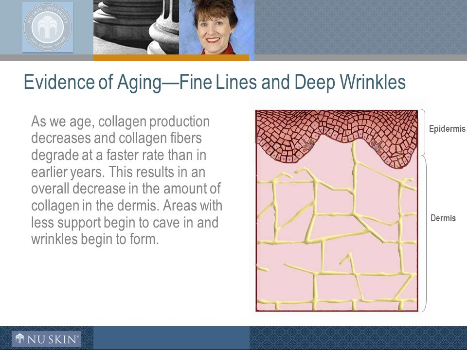 Evidence of Aging—Fine Lines and Deep Wrinkles As we age, collagen production decreases and collagen fibers degrade at a faster rate than in earlier years.