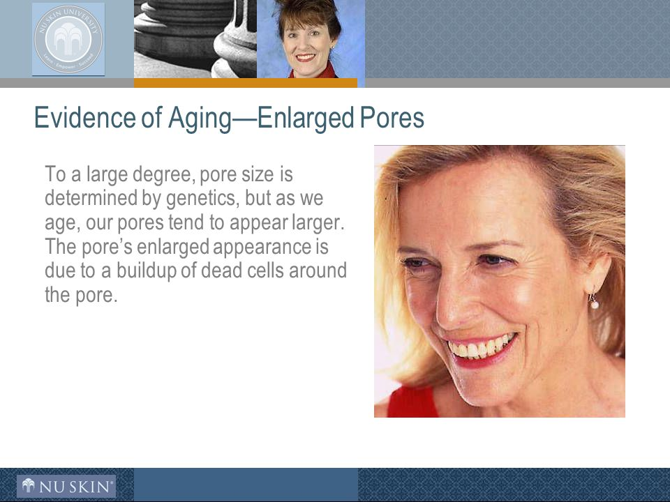 Evidence of Aging—Enlarged Pores To a large degree, pore size is determined by genetics, but as we age, our pores tend to appear larger.