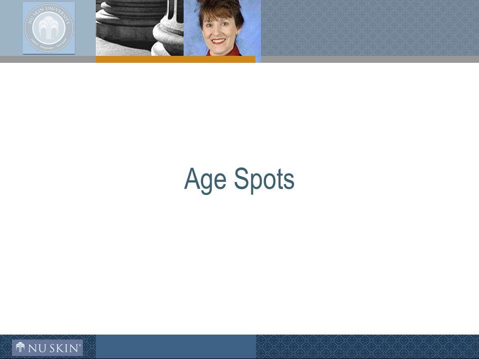 Age Spots