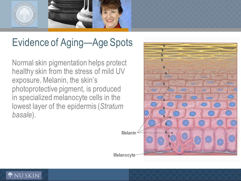 Evidence of Aging—Age Spots Normal skin pigmentation helps protect healthy skin from the stress of mild UV exposure.