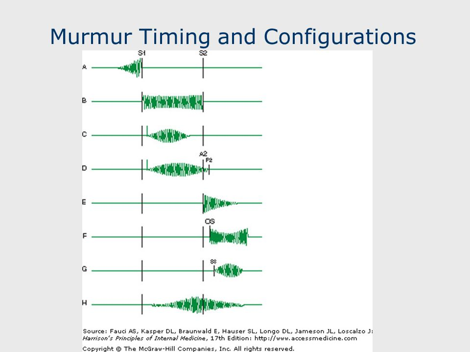Murmur Timing and Configurations
