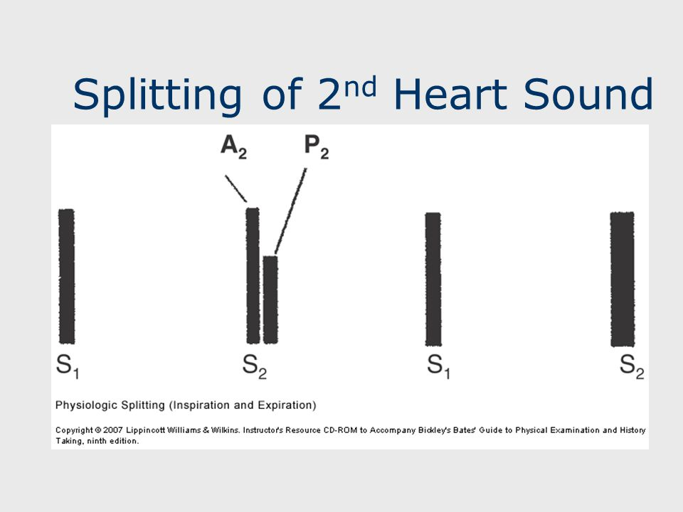 Splitting of 2 nd Heart Sound